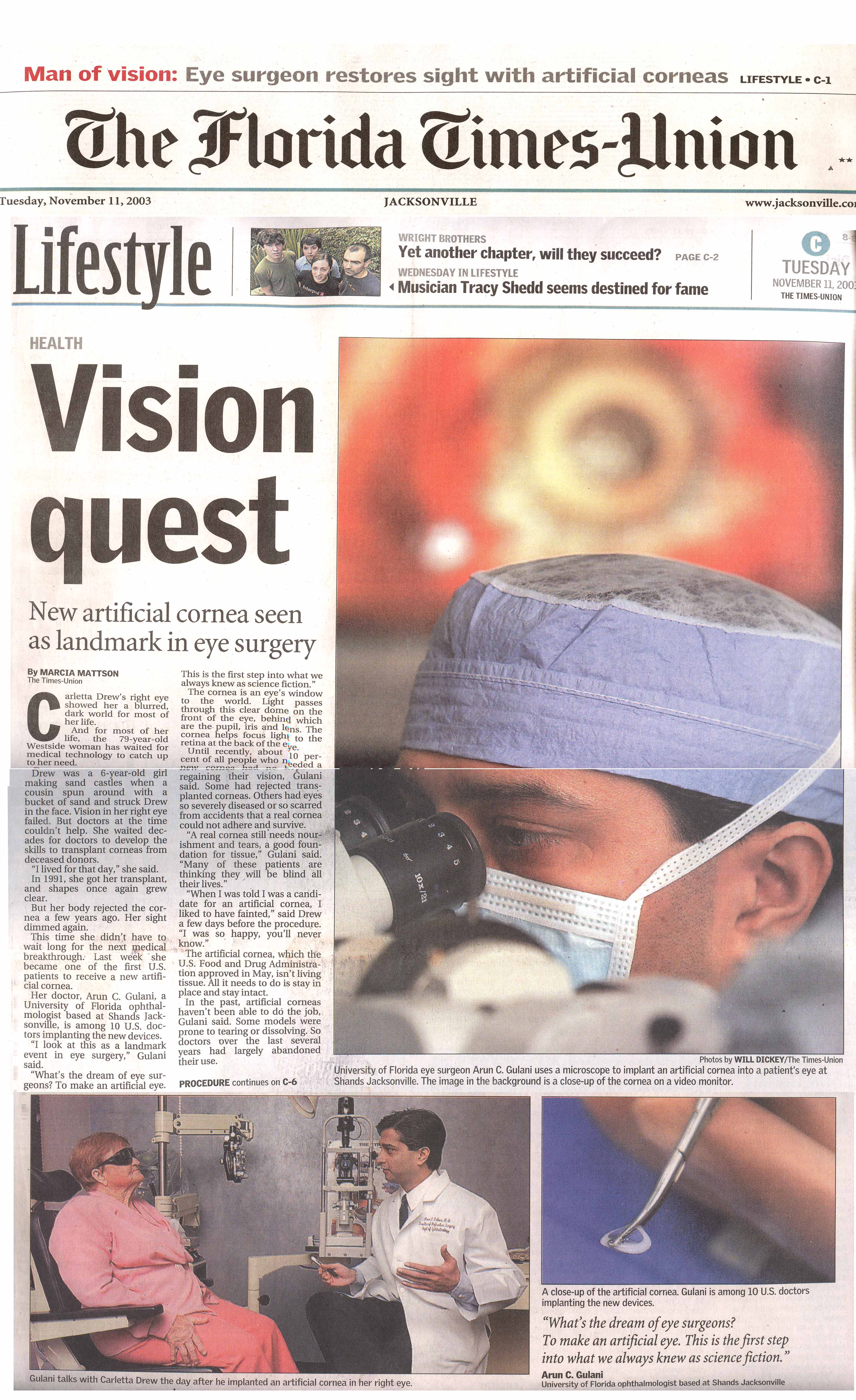 cornea transplant essay Corneal transplant surgery has been helping individuals regain vision for  a  recent paper by bentley et al (2010) demonstrated a biosynthetic.