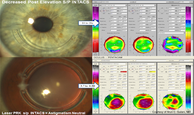 diagram of an eye before and after ccl