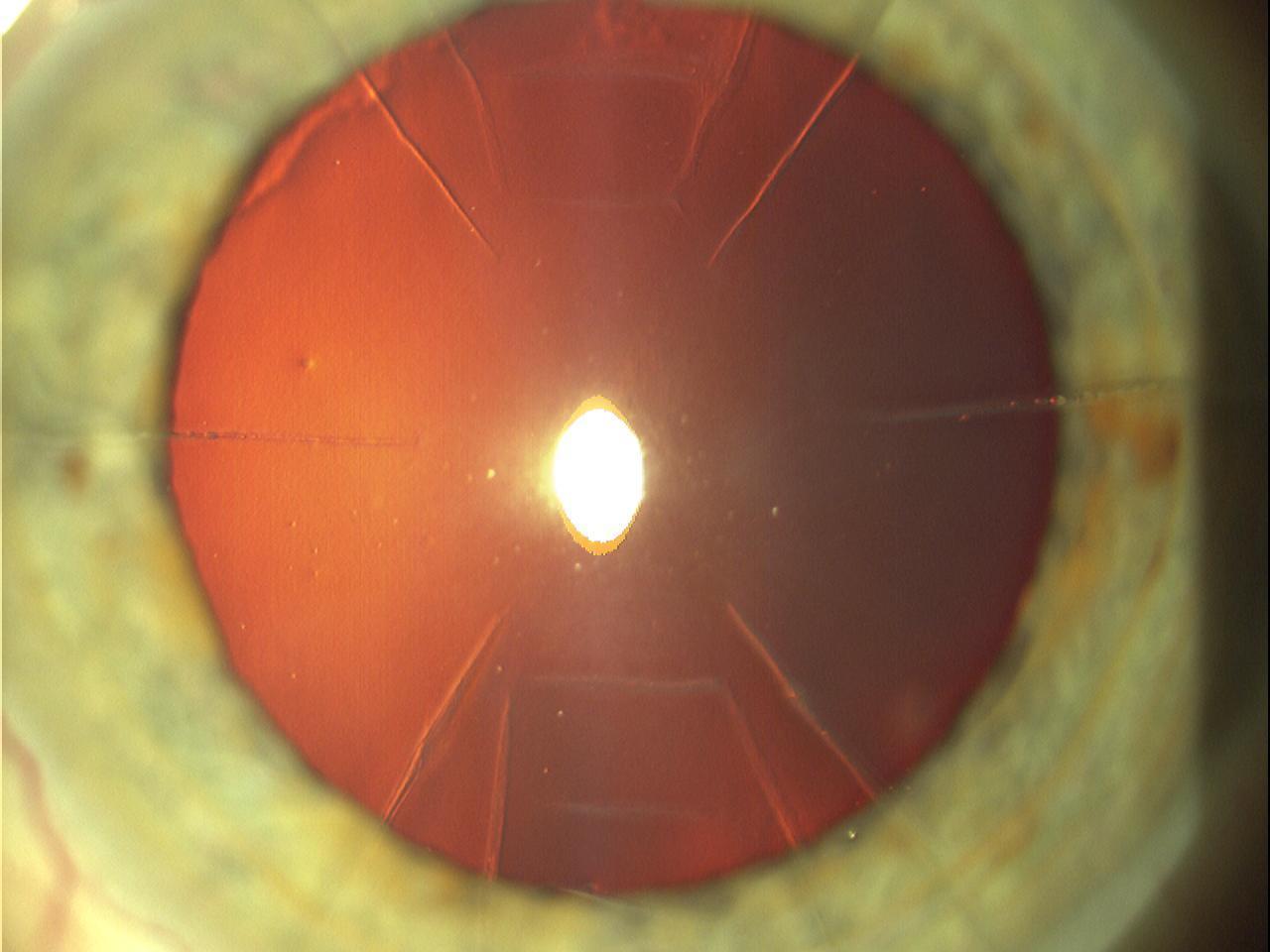 (astigmatic keratotomy) RKRuizAK2.jpg