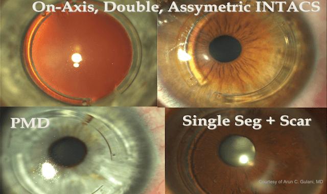diagram of eyes with keratoconus