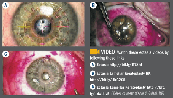 Eye Scans