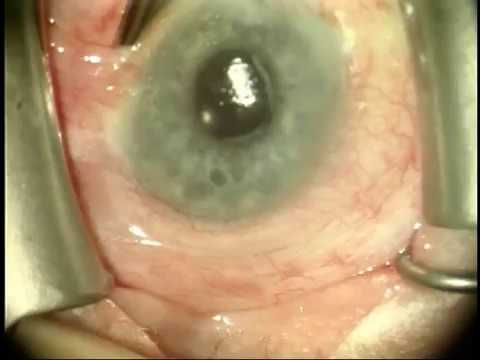 Conjunctivochalasis Surgery by Dr. Gulani