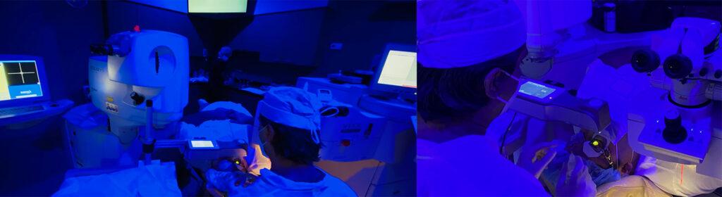 ophthalmologist performing keratoconus surgery