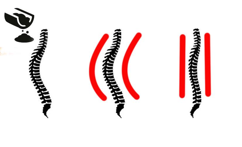 illustration of kerato scoliosis concept