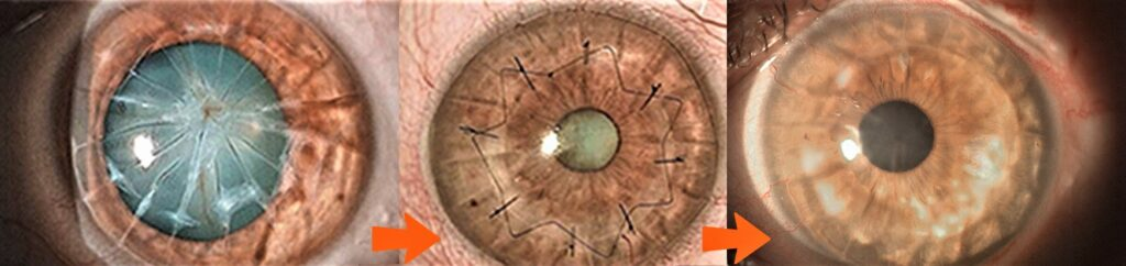 """Staging """"Impossible"""" to Vision: Blinding corneal scar to Anterior Lamellar Keratoplasty to Premium Cataract Surgery to 20/20."""