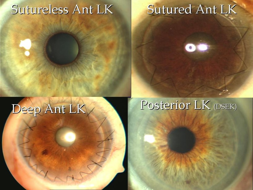 Sutureless Ant LK, Sutured Ant LK, Deep Ant LK, Posterior LK (DSEK)