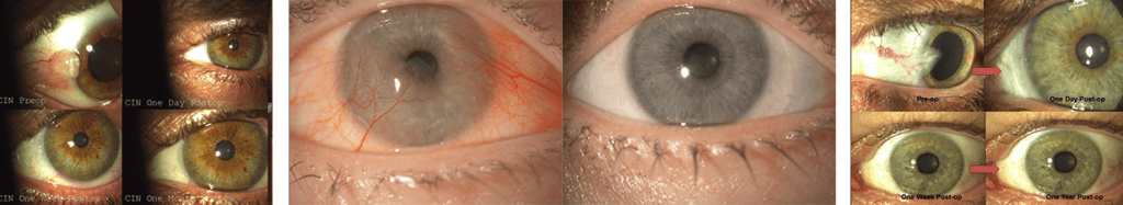 Pre-Operative and Post-Operative images of Gulani SPARKLE™ Technique for Pterygium.