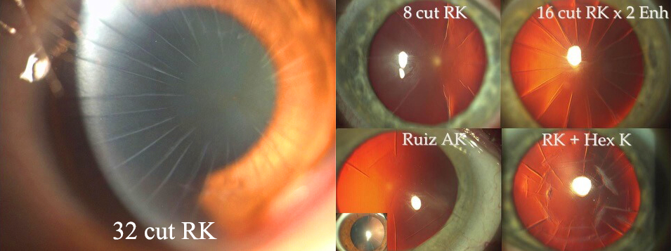 diagram on an anatomical eye