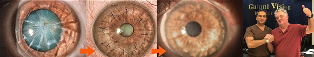 individual patient and ophthalmologist after radial keratotomy surgery