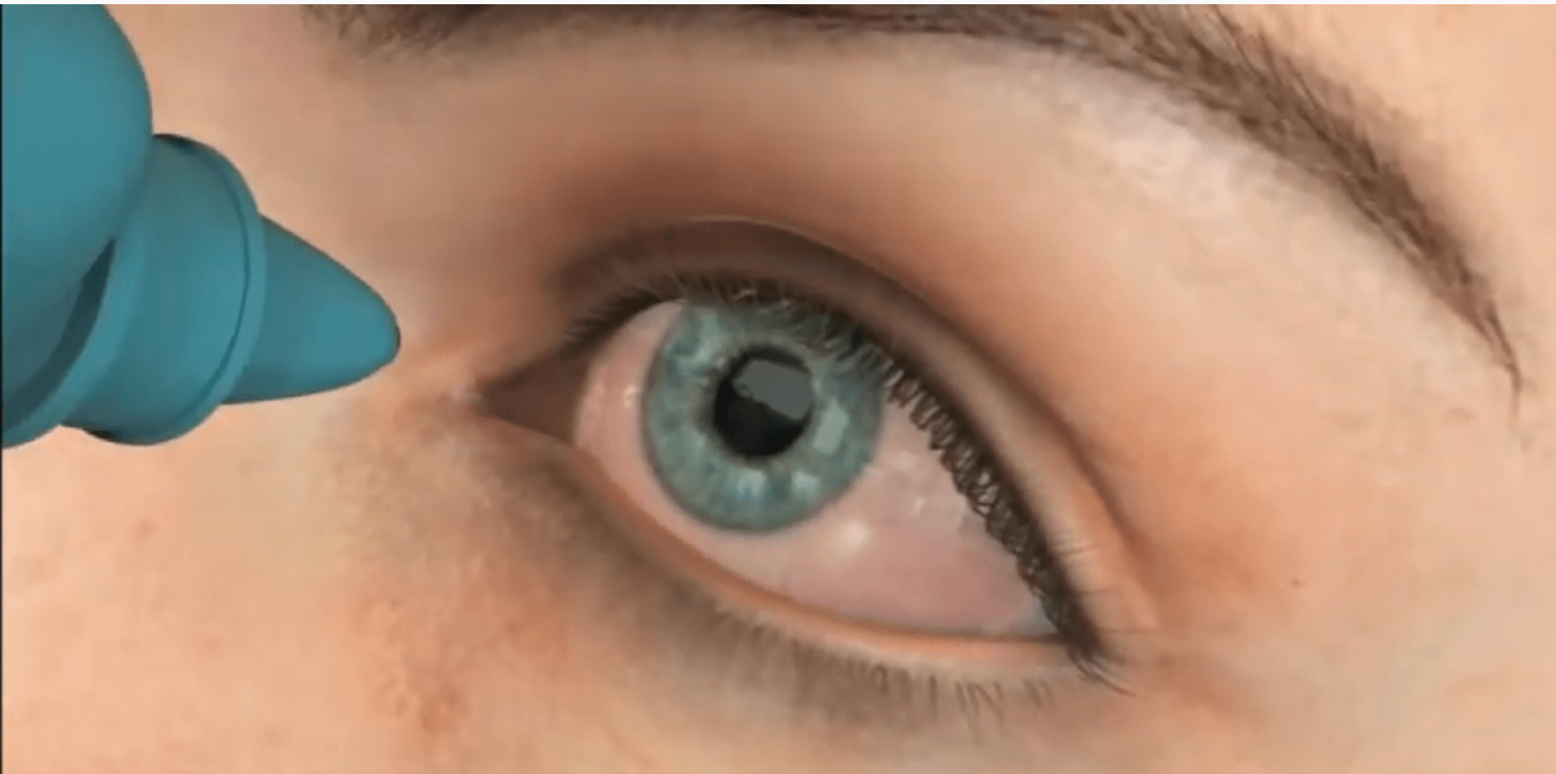 DRY Eyes: Gulani MGP Procedure in Animation