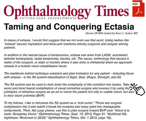 Taming and Conquering Ectasia